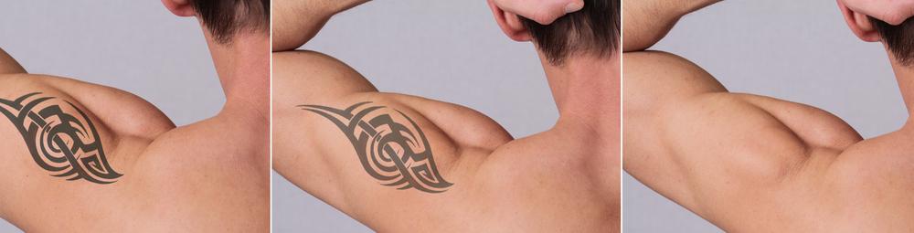 tatoo-verwijderen